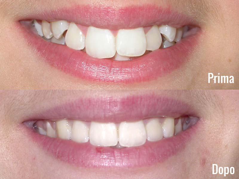 Ortodonzia a negrar valpolicella verona
